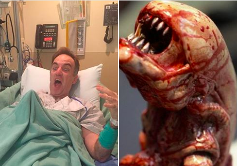 Shawn Brimley before surgery for colon cancer next to image of monster